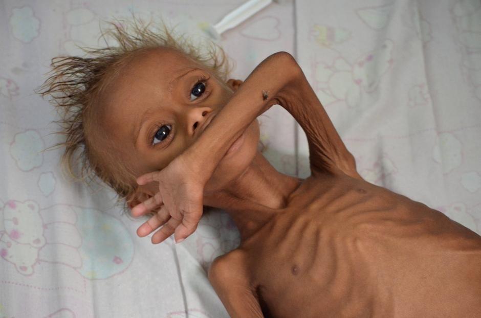 """Rezultat slika za upit """"gladna djeca"""""""