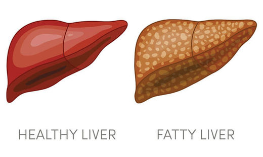 healthy liver fatty liver